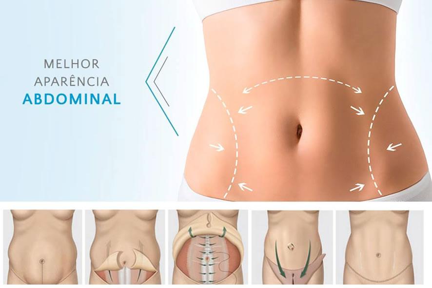 indicações de abdominoplastia em sinop