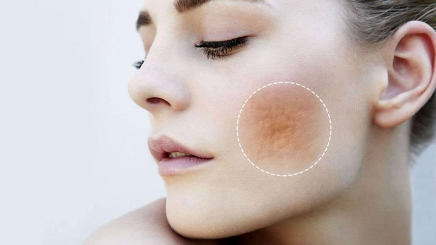 remoção de cicatrizes de acne em sinop