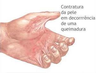 correção de cicatriz de pele causada por contratura