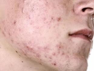 tratamento para cicatriz provocada por espinhas