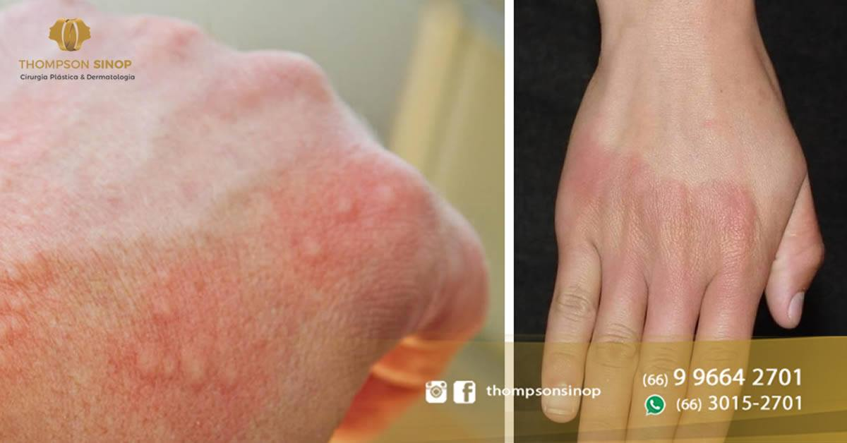 tratamento da dermatite de contato em sinop mt