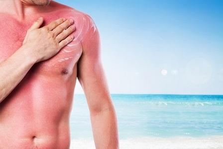 cancer de pele tratamento em sinop mt
