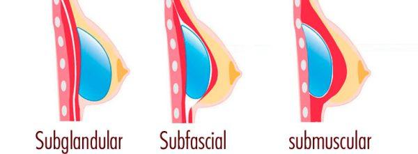 posição das próteses de silicone