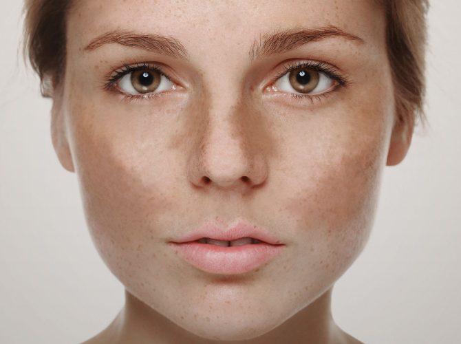tratamento de doenças dermatológicas sinop